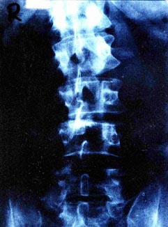 X Ray - polio back
